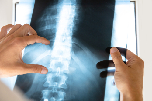 Did You Suffer A Spinal Injury From A Car Accident? Here's What You Need to Know